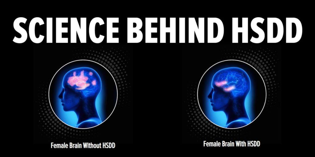 science behind hsdd